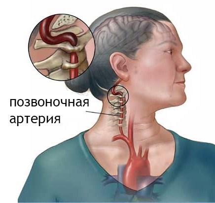 hogyan válasszon gyógyszert a magas vérnyomás ellen a hipertónia harmadik szakasza amely nem megengedett