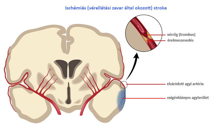 hogyan kell kezelni a magas vérnyomást iszkémiás stroke-ban videó tanfolyam nincs magas vérnyomás
