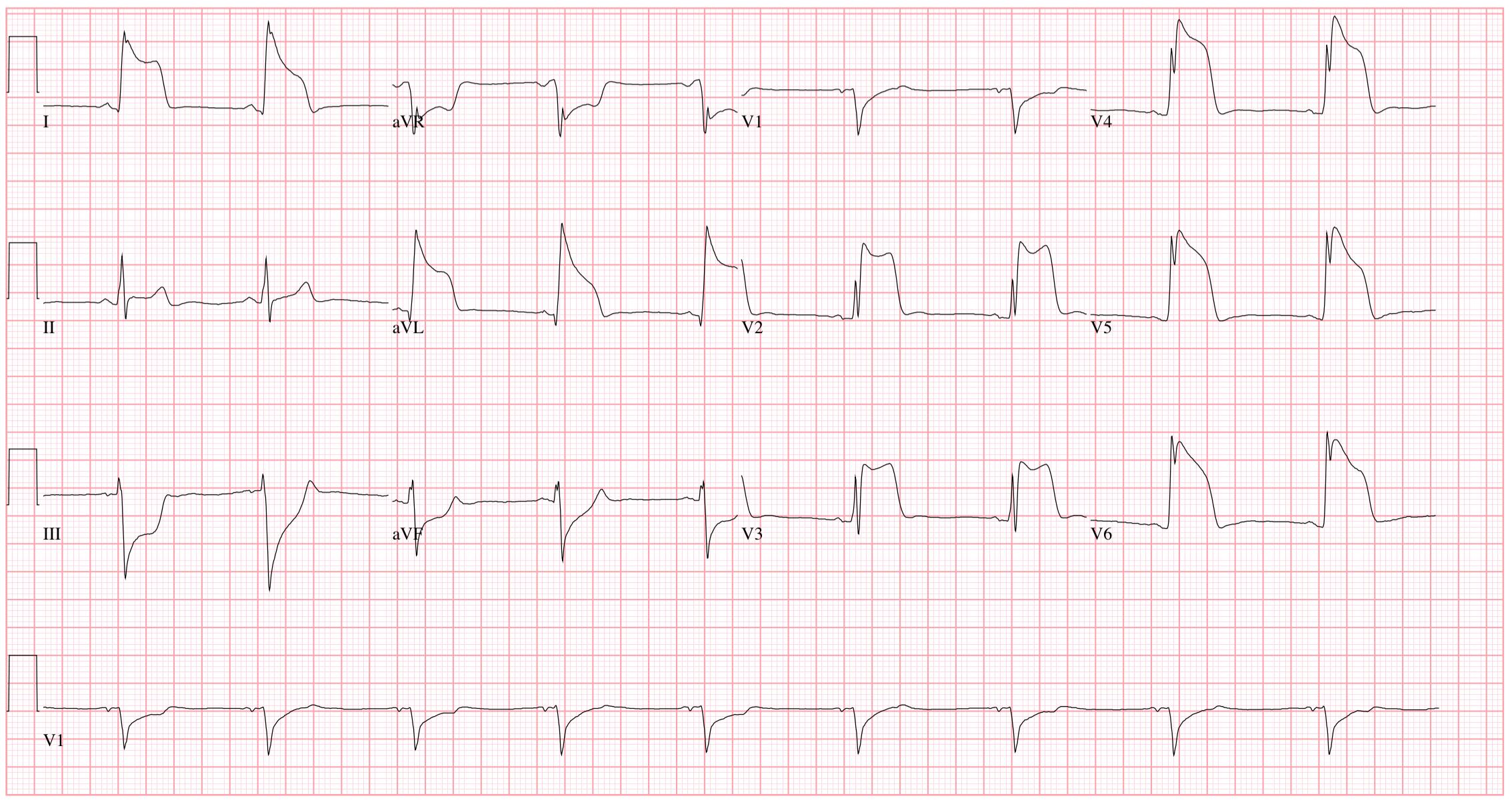 EKG a magas vérnyomás következtetésére retinopathia hipertónia