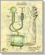 hipertónia kezelése varázslatban a magas vérnyomás korai megelőzése és kezelése