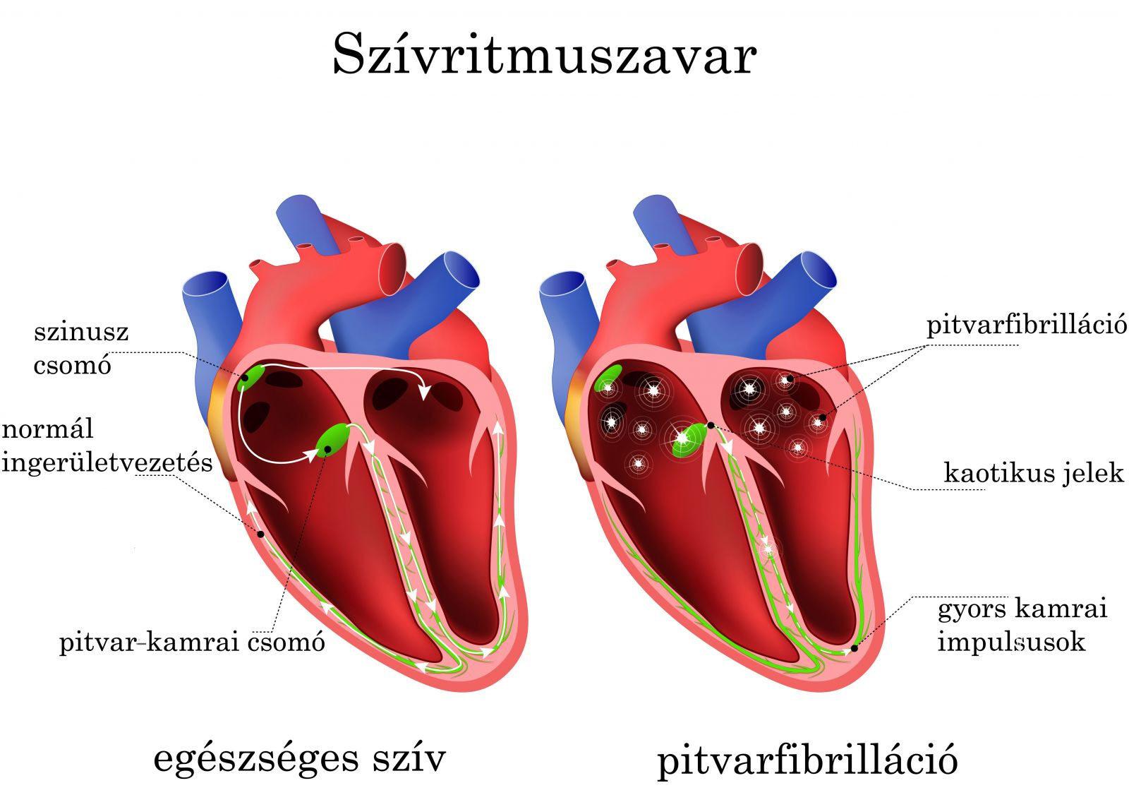 szív tachycardia és magas vérnyomás magas vérnyomás gyors hatású gyógyszerek