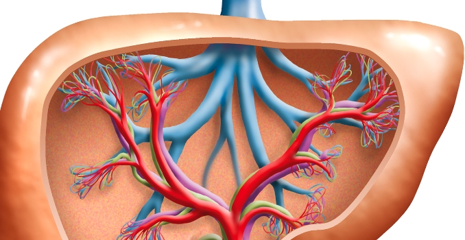 Mi a hypercholesterolemia: leírás, tünetek (tünetek), a betegség megelőzése