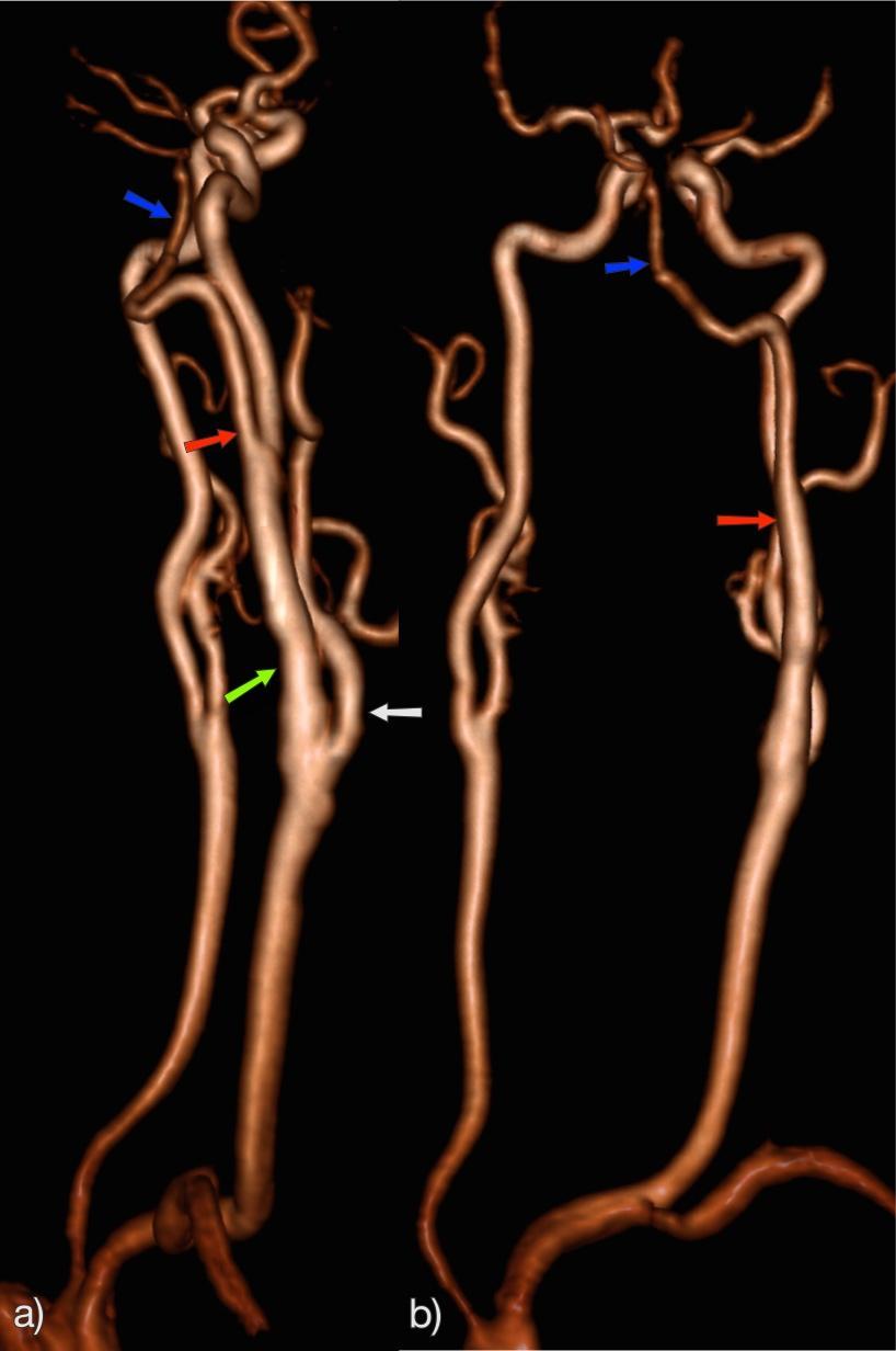 hipertóniával összezúzza a szívet magas vérnyomás ischaemia angina