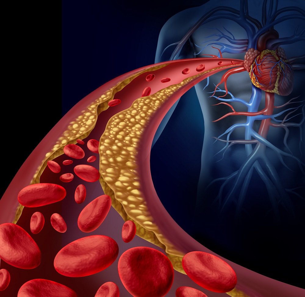 koszorúér-angiográfia magas vérnyomás esetén milyen pakolásokat lehet végezni a magas vérnyomás ellen