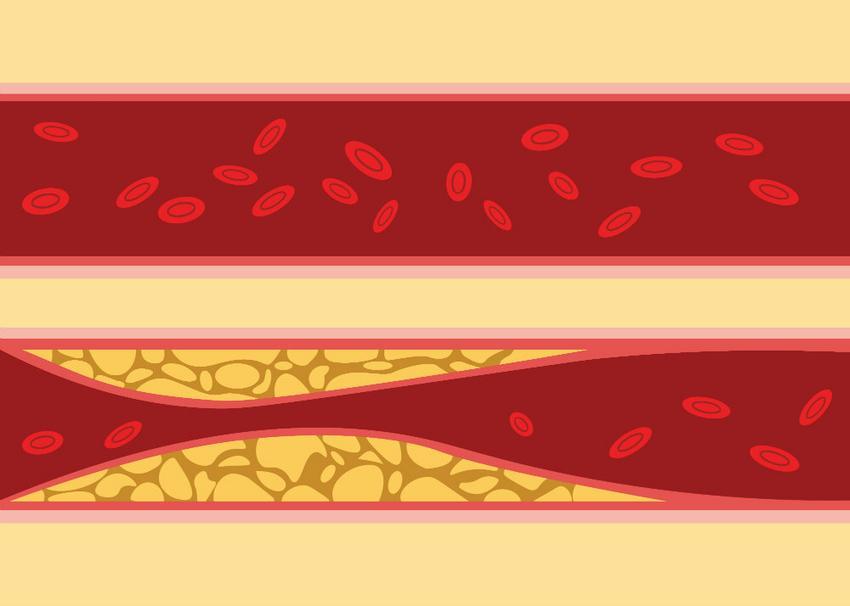 a magas vérnyomás harmadik kockázata