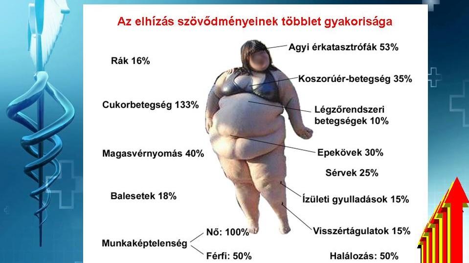 miért magas vérnyomás az elhízásban szimpatoadrenális hipertónia