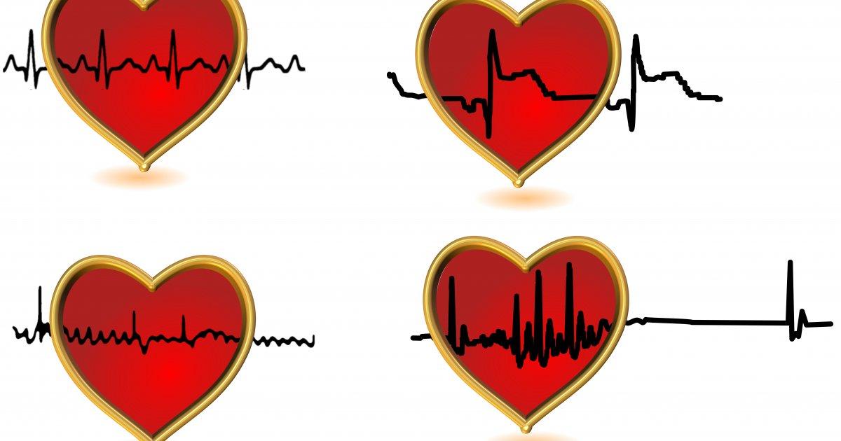 a szív magas vérnyomásának megszakításai folsav hipertónia