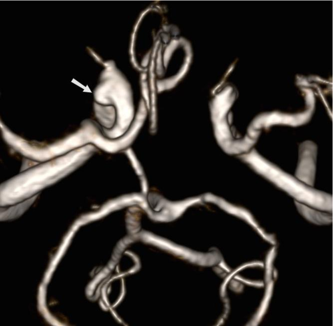 hipertóniával összezúzza a szívet normális élet magas vérnyomás esetén