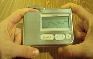 lehet-e magas vérnyomású bradycardia vese magas vérnyomás tünetei