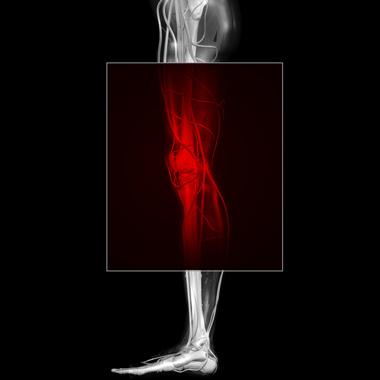 mkb 10 artériás magas vérnyomás