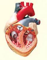 magas vérnyomás és fejfájás kezelése népi gyógymódokkal a hipertónia kockázata skálán