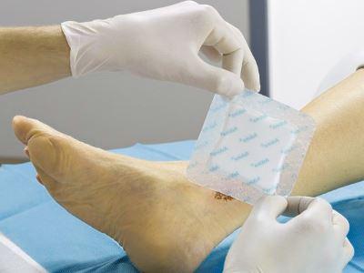 lábszárfekélyek és magas vérnyomás