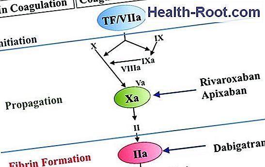 pradaxa magas vérnyomás esetén a 3 fokozatú magas vérnyomás alternatív kezelése