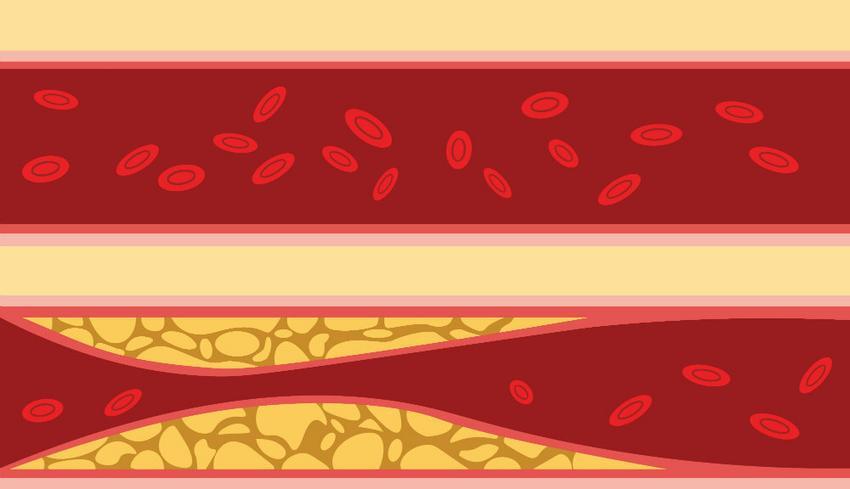 reflexológia a magas vérnyomás kezelésében