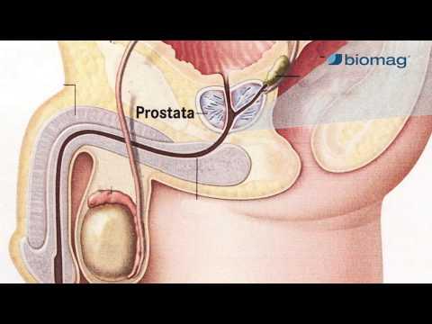 prosztatagyulladás és magas vérnyomás 160/100 nyomás hipertónia
