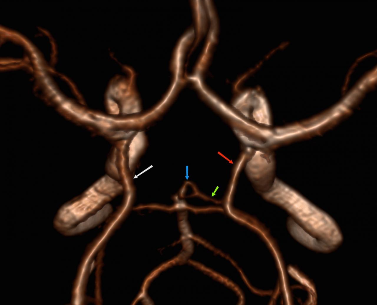 hipertóniával összezúzza a szívet standard a magas vérnyomás kezelésében