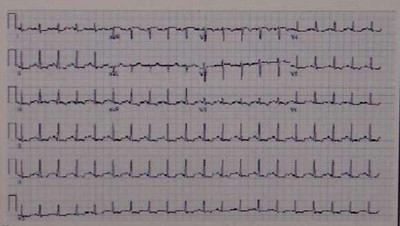 sinus bradycardia és magas vérnyomás