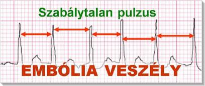 a bal pitvari magas vérnyomás jelei magas vérnyomás elleni légzési edzés