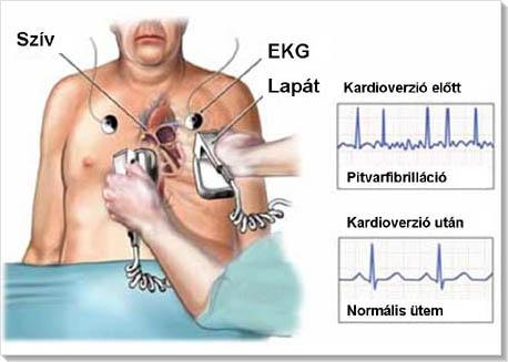 a bal pitvari magas vérnyomás jelei mit jelent az 1 fokos magas vérnyomás