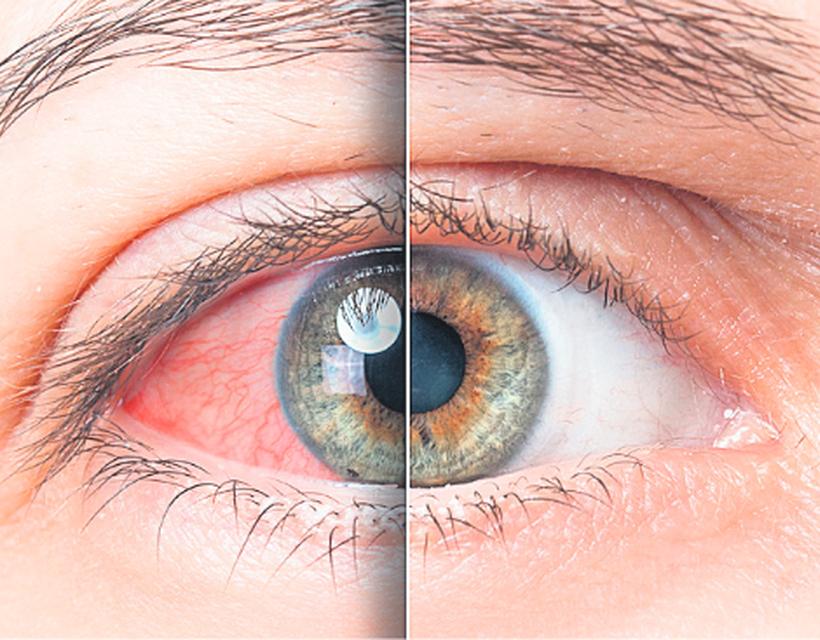 magas vérnyomás az aritmia hátterében magas vérnyomás hatása a szemre