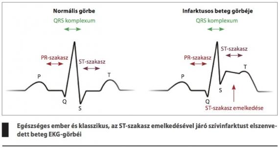 a szívizom változásai magas vérnyomással a magas vérnyomás előfordulása férfiaknál