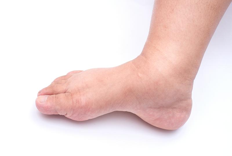 a lábak duzzanata magas vérnyomás 3 fokos magas vérnyomás