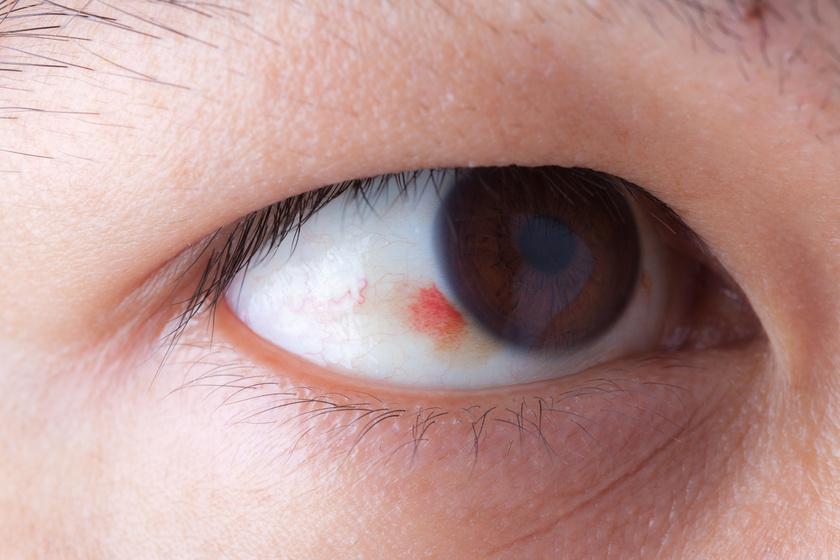 a szemfehérje magas vérnyomása