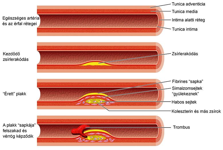 1-es típusú magas vérnyomás mi ez a hipertóniáról szóló legfontosabb programról