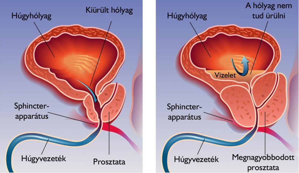 magnézium készítmény magas vérnyomás ellen magas vérnyomás töltése