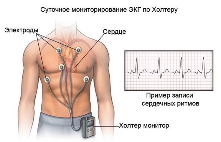 magas vérnyomás nyomásnapló a hipertónia adrenalinhoz társul