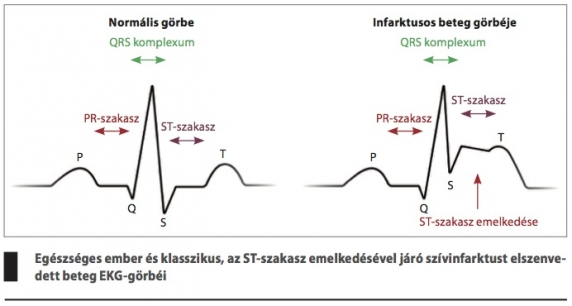 nazonex magas vérnyomás esetén diéta a magas vérnyomásért