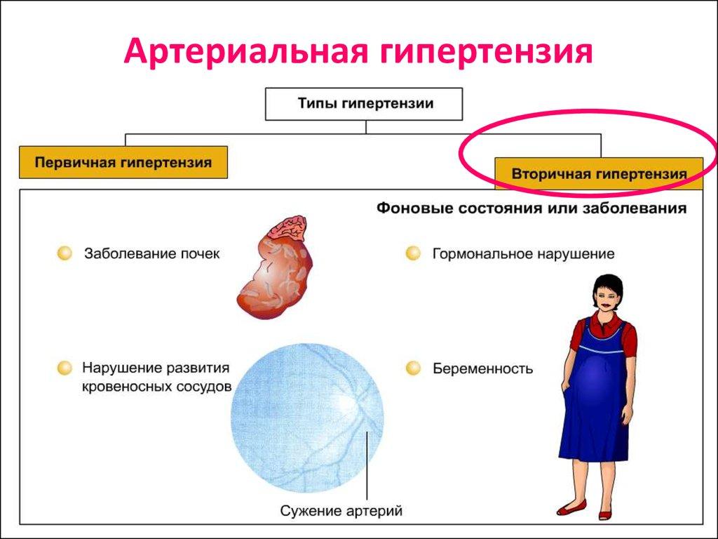egészséges reggeli magas vérnyomás ellen érszűkület hipertónia