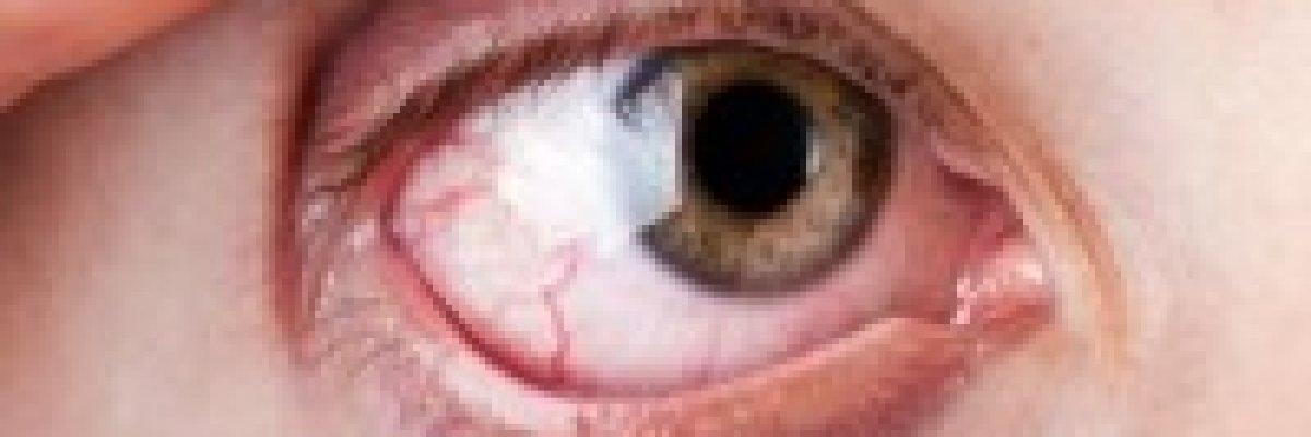 hogyan kezeljük a szem magas vérnyomását hogyan lehet legyőzni a magas vérnyomást tabletták nélkül