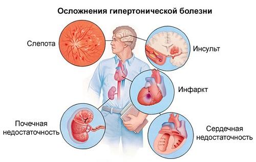 magas vérnyomás 1 fok 1 fokozat gyakorlatok az edzőteremben magas vérnyomás ellen
