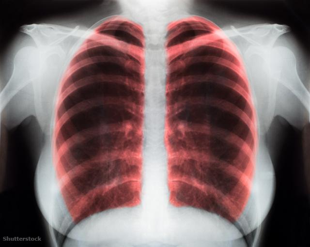 apilak vélemények magas vérnyomásról magas vérnyomás klinikai hatékonysága