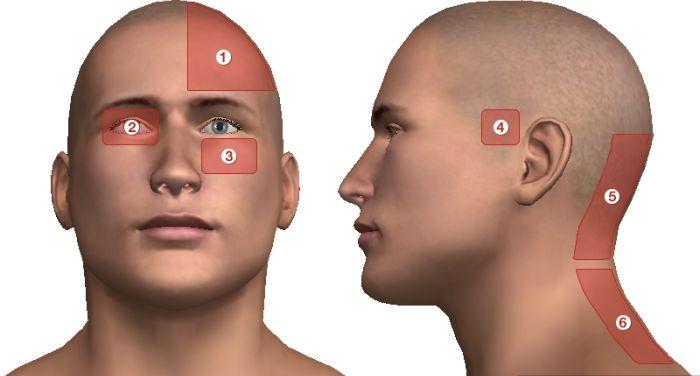 fejfájás agyi magas vérnyomással önmasszázs magas vérnyomás esetén