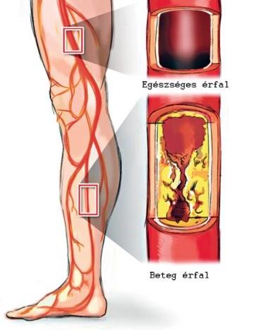 magas vérnyomás szén-dioxid kezelés a hipertónia kockázatainak okai