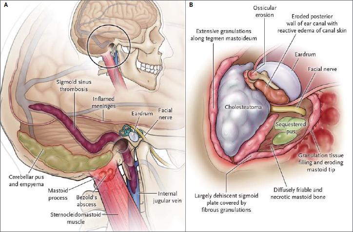 hipertóniás tentoriummal gyógyszer hipertónia receptek