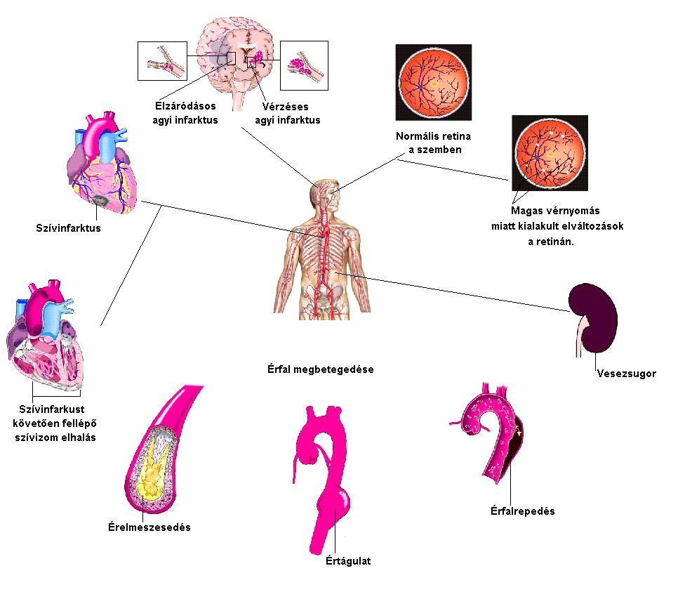 magas vérnyomás génjei