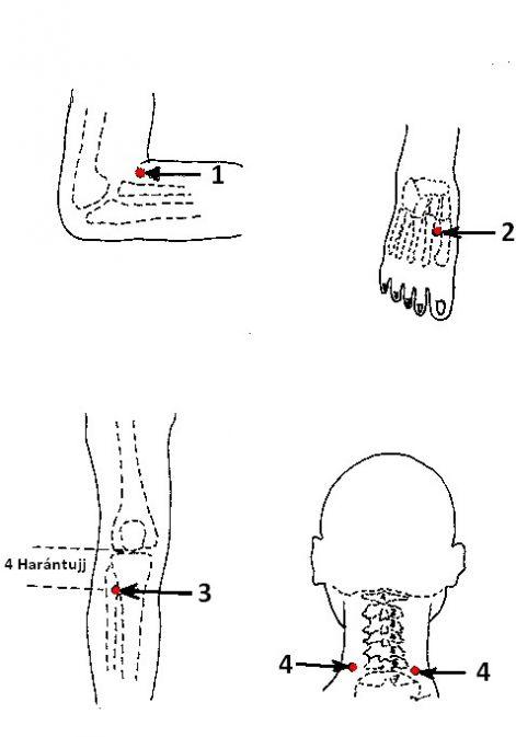 magas vérnyomás és akupresszúra neurológiai hipertónia