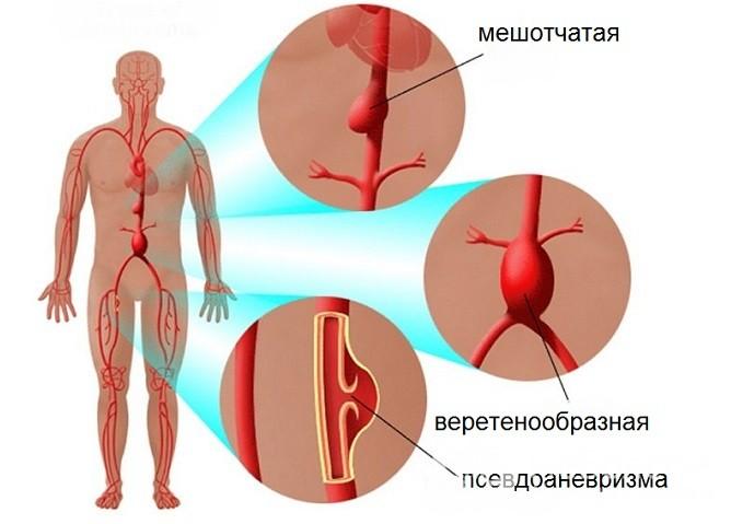 A magas vérnyomás így is lehet halálos - HáziPatika