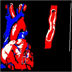 a magas vérnyomás mint hipertóniás krízis
