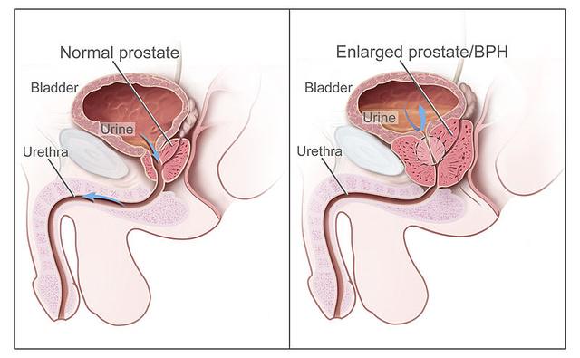 Prosztata-megnagyobbodás tünetei és kezelése