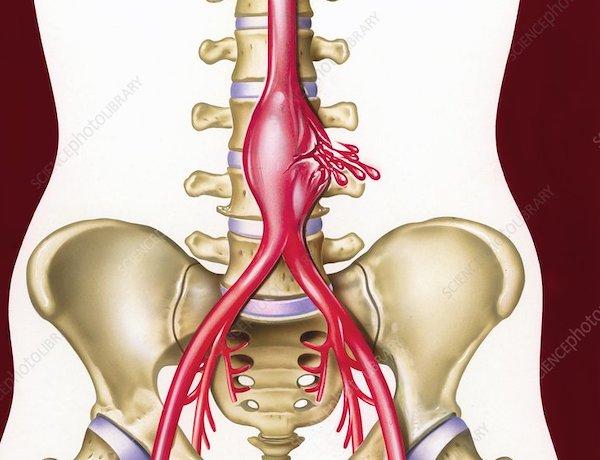 aorta aneurysma és magas vérnyomás