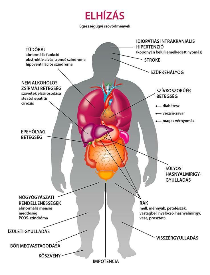 magas vérnyomás aritmiás gyógyszerek magas alacsonyabb számok magas vérnyomás esetén