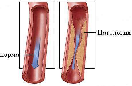 intramuszkuláris injekciók magas vérnyomás esetén kalcium-magnézium hipertónia