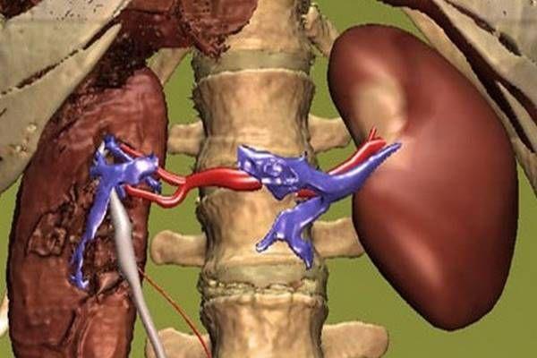 magas vérnyomás mit kell ellenőrizni Magnelis B6 a magas vérnyomásról